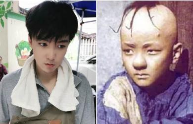 Sai lầm của chuyên gia trang điểm khiến ngôi sao nhí bị rụng tóc nghiêm trọng và phải khâu 300 mũi trên đầu